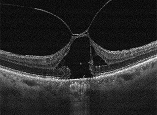 Macular OCT of vitreomacular traction (VMT)