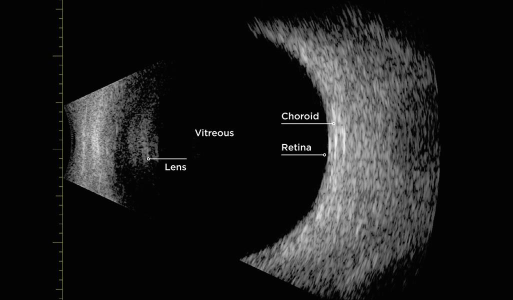 Normal B-scan