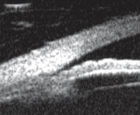 Normal UBM scan