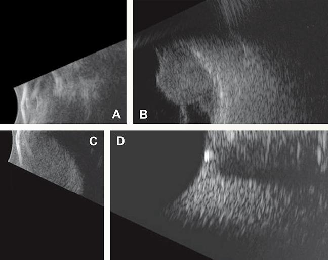 Four views of pathology on B-scan