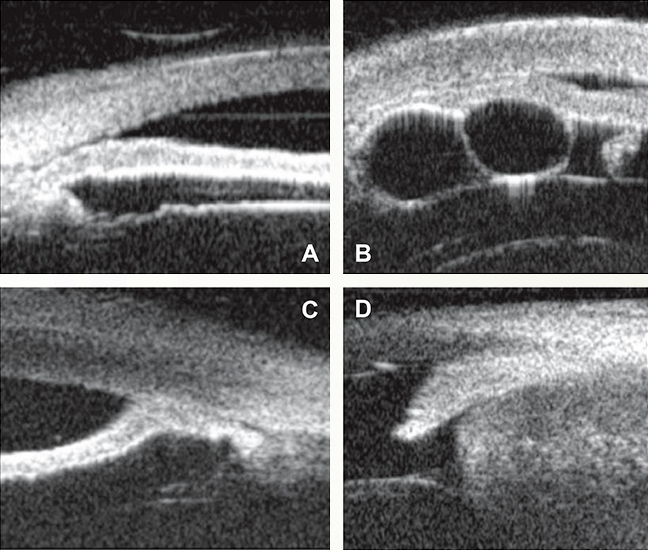 Four views of pathology on UBM